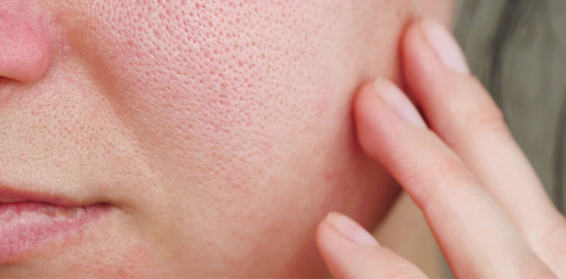 Enlarged Pores